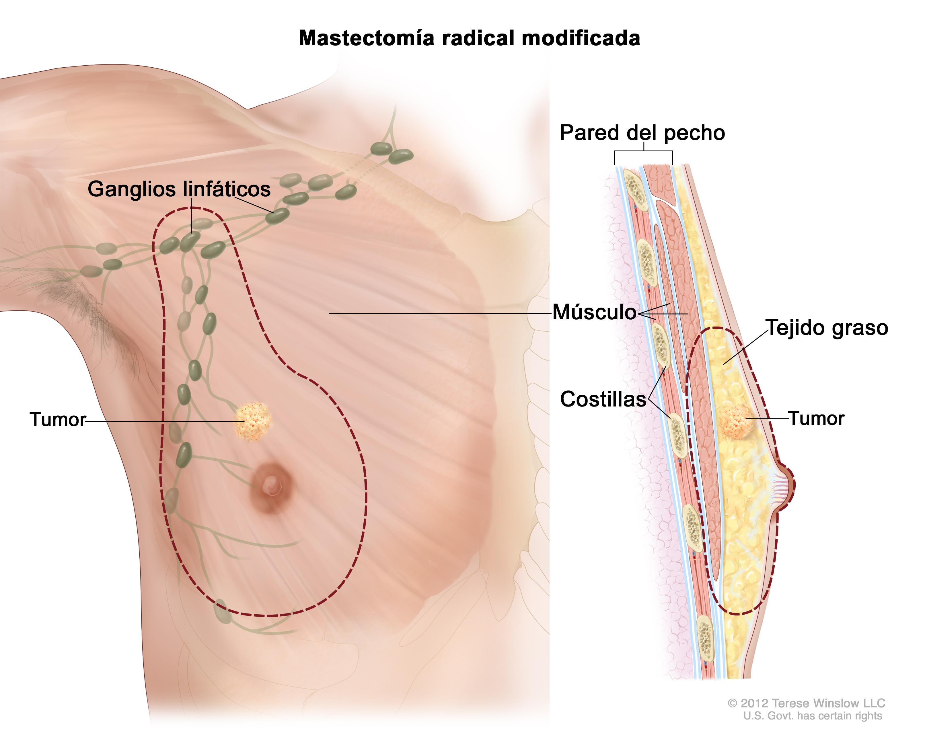 Moderno Ganglios Linfáticos Mapa Modelo - Imágenes de Anatomía ...